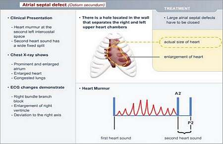 Adult diagnosis hole in heart